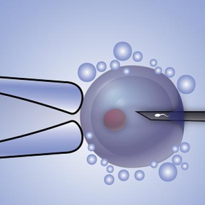 tup-bebek-mikroenjeksiyon-(ICSI)