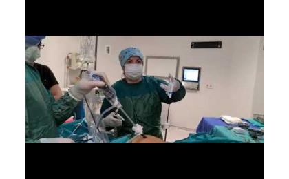 sekonder-infertilite-laparaskopik-over-kisti-ve-adezyon-acilmasi