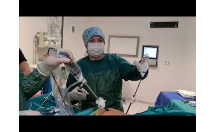 over-kisti-yumurtalik-kisti-laparaskopik-cerrahi-laparaskopik-kist-eksizyon