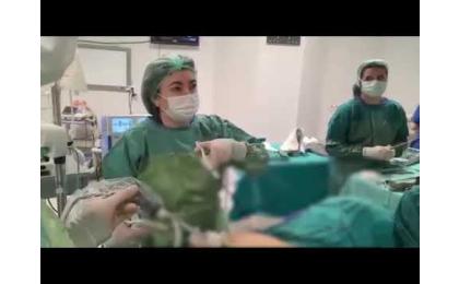 laparaskopik-histerektomi